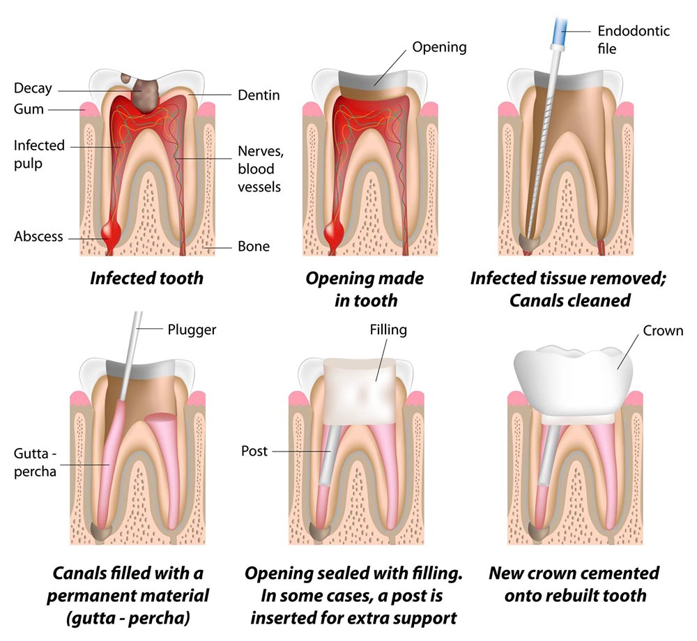 Root Canal Process in steps at Zen Dental Studio
